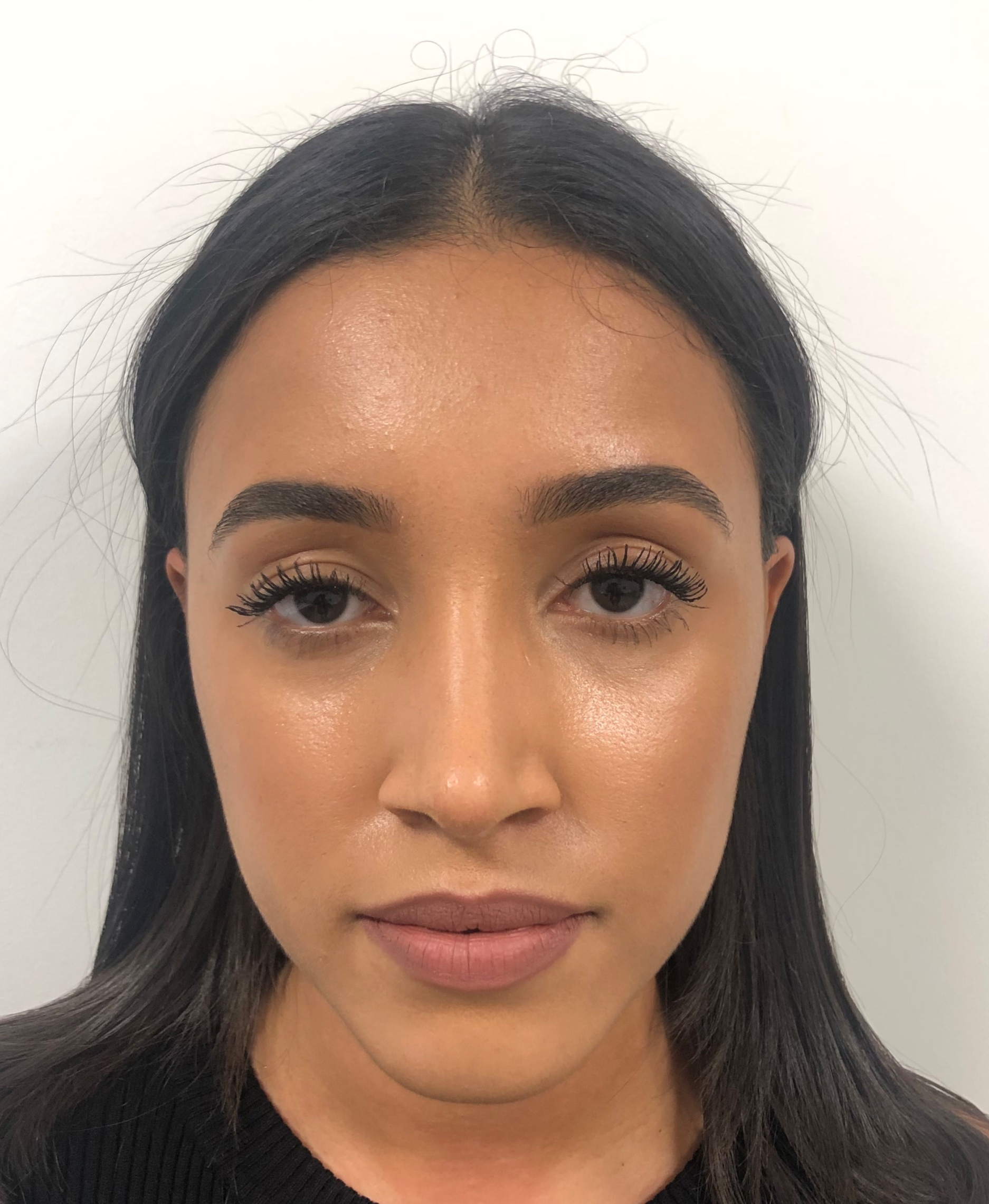 Recovery After Rhinoplasty What To Expect And When